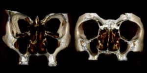 The maxillary sinuses, those pouches on either side of the human nose, change their size depending on the shape of the nasal cavity, according to a research team led by the University of Iowa. The study shows why the maxillary sinuses in African-origin faces (shown at right) differ from those of European origin. 3D renderings provided by researcher Nathan E. Holton.