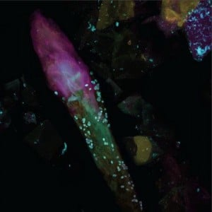Image shows a hair follicle in the skin surrounded by bacteria and fungi under a fluorescent microscope. The samples were obtained from skin on the back of a study participant. Fungi appear blue-green, bacteria appear pink and skin cells and the hair shaft appear yellow. Source: Sci Transl Med 5, 172ra21 (2013); DOI: 10.1126/scitranslmed.3004925.