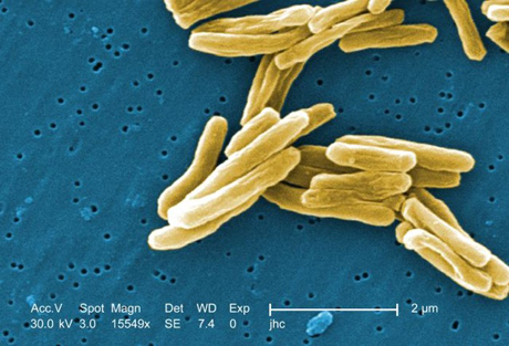 Colorized scanning electron micrograph of Mycobacterium tuberculosis bacteria.