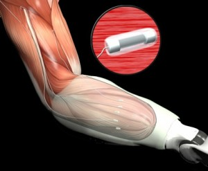 Artist's concept of Leaded Implantable Myoelectric Sensors (LIMES) to be used as a novel peripheral-interface technology with targeted muscle re-innervation (TMR). (Graphic illustration provided by DARPA)
