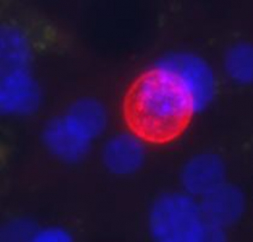 Plasmodium vivax (red sphere) grows in engineered liver tissue developed by MIT researchers to study malaria. The blue spheres represent the nuclei of cells that make up the microscale liver tissue. Credit: MIT