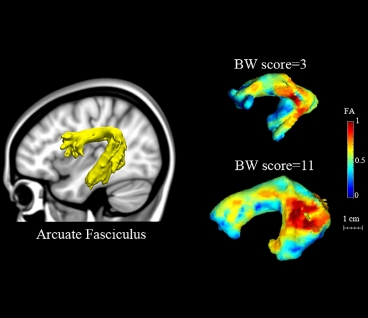 On the left, the arcuate fasciculus is highlighted in the brain. On the right, the colors of the arcuate fasciculus indicate the level of randomness of water diffusion within the structure, which reflects the integrity of white matter tracts and fiber organization. Higher fractional anisotropy (FA) scores indicate higher tract integrity. The MIT team found that those values correlated with scores on a verbal task known as blending words (BW).  Image: Zeynep Saygin/MIT