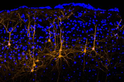 A mouse brain's motor cortex shows a subset of neurons, labeled in orange, that have long axons extending to the auditory cortex. These neurons convey movement-related signals that can alter hearing. Blue dots in the background show brain cells that do not send axons to the auditory cortex. (Credit: Richard Mooney Lab, Duke University.)