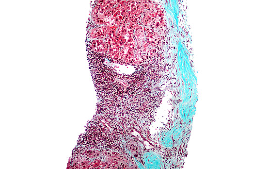 Stained liver biopsy micrograph showing hepatocellular carcinoma cells with Mallory bodies (reds and blacks).