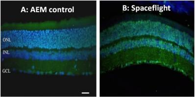 This is retina tissue from a normal mouse (A) and after spaceflight (B) indicate oxidative damage, identified with green fluorescence. Nuclei are stained blue. Credit: Radiation Research