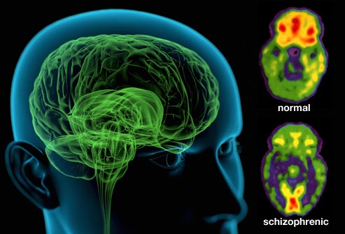 Neural degeneration in schizophrenia impairs cognitive functions of the brain. Image credit: easterndrugs.com