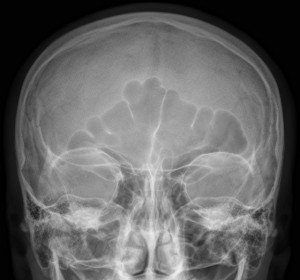 X-ray of a human skull with paranasal sinuses. Credit: Wikimedia Commons
