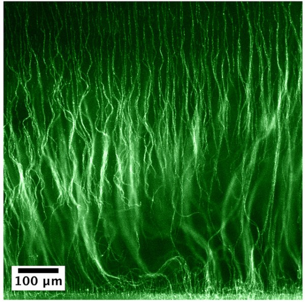 Argonne materials scientists announced a new technique to grow these little forests at the microscale (the scale shows 100 micrometers, which is about the diameter of a single human hair). Image by Arnaud Demortière, Alexey Snezhko and Igor Aronson.