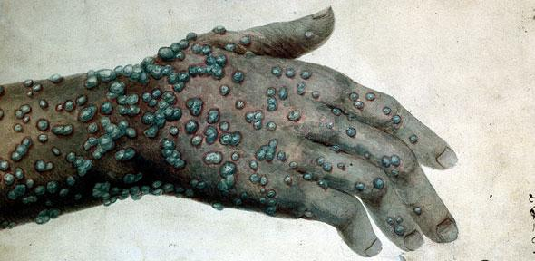 Watercolour of a hand with smallpox by Robert Carswell in 1831. Credit: Wellcome Library, London