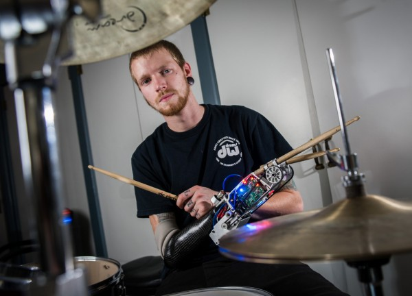 Jason Barnes can now flex his muscles to send signals to a computer, which tightens or loosens his drumstick.