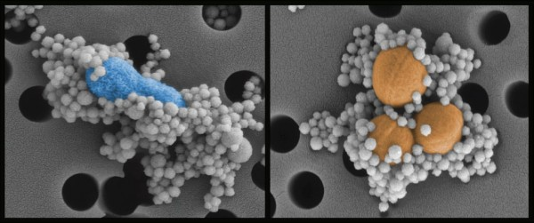 DARPA's Dialysis-Like Therapeutics (DLT) program engineered a new version of a natural immune system protein and applied it to nanoscale magnetic beads. Sepsis microbes and toxins (blue and orange) stick to the protein-covered beads (white), which a magnet pulls from the blood for collection and removal. The cleaned blood is then re-infused into the patient.