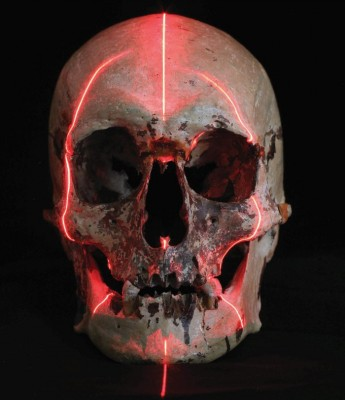 The 'Baxter skull' with CT scan lines. Credit: Victorian Institute of Forensic Medicine.