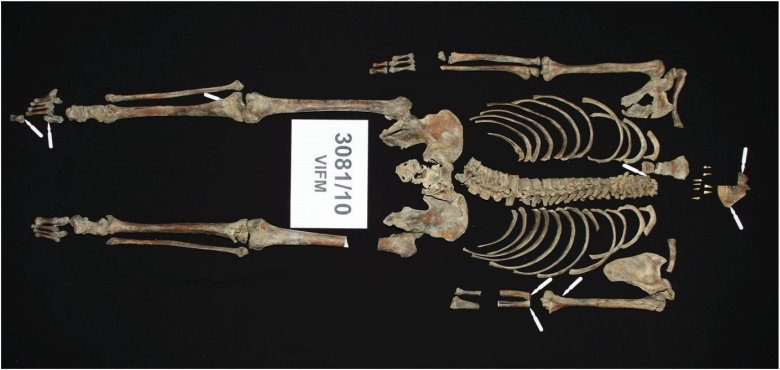Ned Kelly's skeletal remains Credit: Victorian Institute of Forensic Medicine.