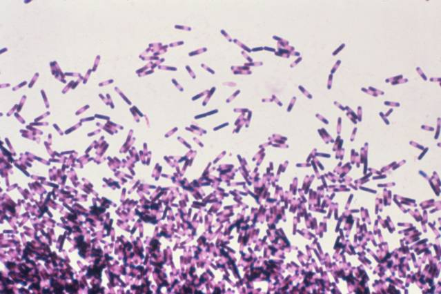 Clostridium difficile (shown here) is a bacteria in the intestines that has been successfully treated through microbiome manipulation. Courtesy of the Centers for Disease Control and Prevention
