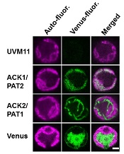 Localization of ACK and PAT Venus fusion proteins in Chlamydomonas. Picture courtesy of Wenqiang Yang.