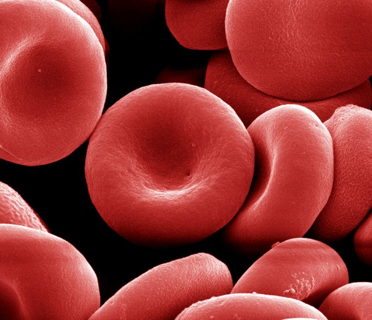 Red blood cells before being distorted into spiky spheres by the Sandia and University of New Mexico technique for possible commercial use. (Image courtesy of Sandia National Laboratories)
