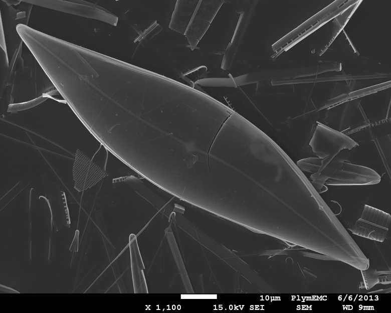A microphotograph of sea-ice diatoms (Pleurosigma stuxbergii), which produces the chemical fossil that scientists study to describe the extent of sea ice in the Arctic. Photo: Thomas A. Brown and Simon T. Belt