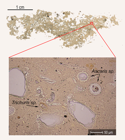 Excrement of human or swine infested with roundworm (Ascaris sp.) and whipworm (Trichuris sp.)