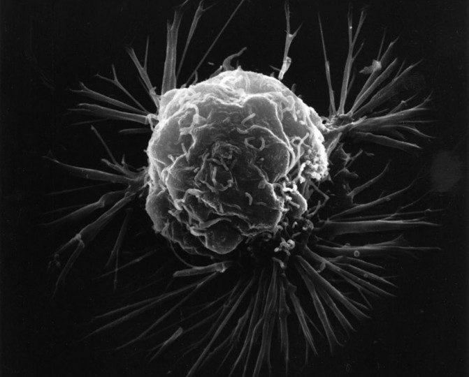 New study sheds light on the role of chance in cancer development. Image credit: National Cancer Institute via Wikipedia, Public Domain.