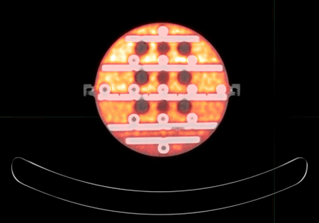 A fused PET-CT image of the new phantom with its traceably calibrated amount of fluorine-18 (orange). The circular objects are the MR-visible test spheres; in this PET-CT image they appear as regions with no PET response.
