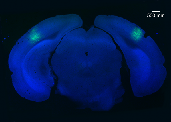 A small region of the brain called the primary visual cortex can be targeted using a virus (light green) to block habituation learning. Image: Eitan S. Kaplan and Sam F. Cooke/Bear Lab