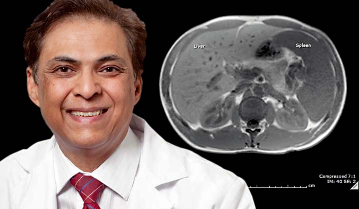 Yale's Dr. Pramod K. Mistry and an image from his study showing an MRI of a Gaucher disease patient with massive liver and spleen enlargement.