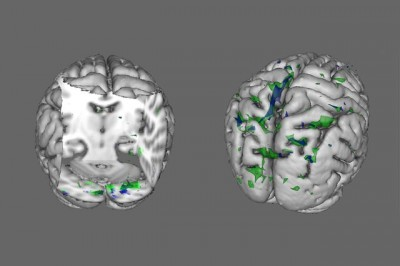 """People with anorexia (green areas) and BDD (blue areas) show less activity than healthy people in the brain regions that process """"global"""" information when viewing houses (left) and faces (right)."""