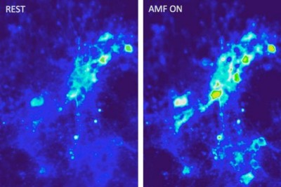 Images show calcium ion influx into neurons as a result of magnetothermal excitation with alternating magnetic fields in the presence of magnetic nanoparticles. Courtesy of the researchers