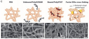 Blood clots treated with PolySTAT (second from right) had denser fibrin networks, which helps reinforce and strengthen the clots. Image credit: University of Washington