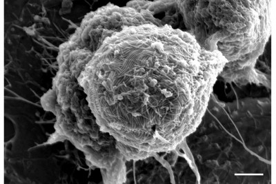 Electron micrograph of a cell infected with Ebola virus. Image credit: Takeshi Noda