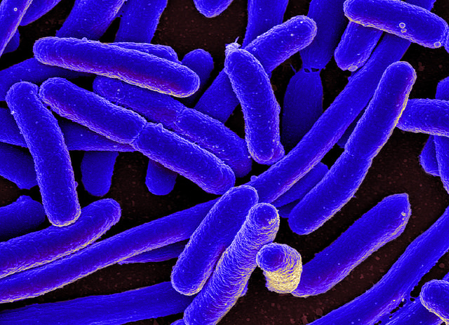 Gut microbiota found to interact with a type of cells in the gut that produce serotonin. Image credit: NIAID via flickr.com, CC BY-SA 2.0.