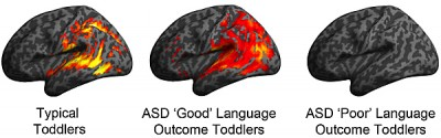 """Image depicts patterns of brain activation in typically developing, ASD """"Good"""" and ASD """"Poor"""" language ability toddlers in response to speech sounds during their earliest brain scan (ages 12-29 months). The imaging occurred one to two years prior to their language outcome designation at age 30-48 months. Note similarity in patterns of activation between the ASD Good and typically developing toddlers, which display robust activation in classic language brain regions, such as the superior temporal gyrus. In contrast, the ASD Poor language toddlers showed no statistically significant activation in classic language regions."""