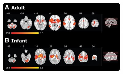 Magnetic Resonance Imaging (MRI) giving a comparison of brain activity in adults and babies when poked with a special retracting rod simulating a sensation of pain. Red-yellow coloured areas represent active brain regions. The side-on view on the far right shows the level at which each scan was taken.