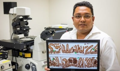 Existing chemo drug reduced colon tumour growth by half