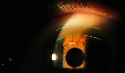 A copper ring, known as Kayser Fleischer ring, appears in the Descemet's membrane of the cornea of a Wilson disease patient. Image credit: Dr. Joel Geffen
