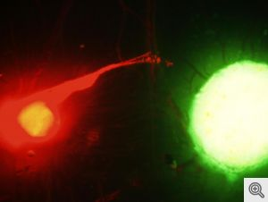 The fluorescence image shows the interaction between the nerve (red) and cancer (green). Image credit: Nisha D'Silva