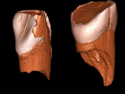 Three-dimensional digital models of the lower deciduous incisor from Riparo Bombrini (left) and the upper deciduous incisor from Grotta di Fumane (right). © Daniele Panetta