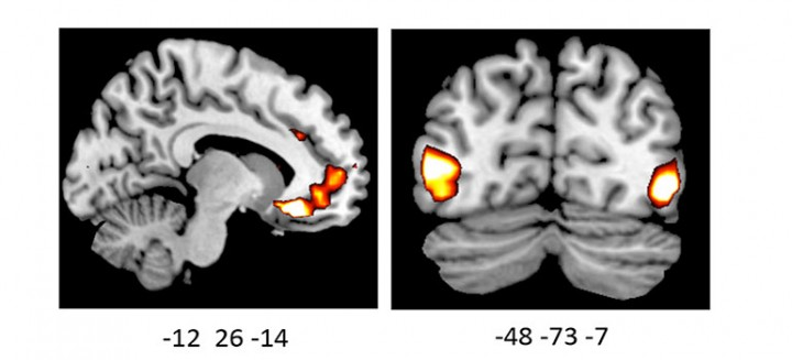 Image shows increased activity in the brains of ADRA2b deletion carriers.