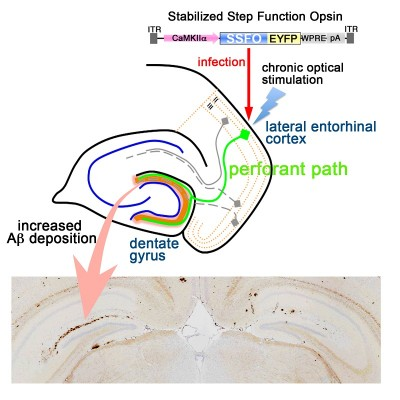 The gene encoding the protein channelrhodopsin, that elicits neuronal activation by optical stimulation, was introduced into the lateral entorhinal cortex of AD model mice. After 5 months of stimulation with light, amyloid β deposition increased in the dentate gyrus of the hippocampus (visualized in brown, arrow), was increased. Image credit: Takeshi Iwatsubo et al.