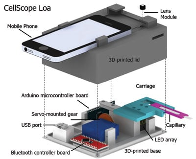 A schematic of the CellScope Loa device, a mobile phone-based video microscope. The device includes a 3D-printed case housing simple optics, circuitry and controllers to help process the sample of blood. CellScope Loa can quantify levels of the Loa loa parasitic worm directly from whole blood in less than 3 minutes. Image credit: Mike D'Ambrosio and Matt Bakalar, Fletcher Lab, UC Berkeley