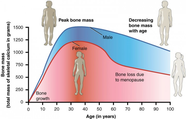 Bone density peaks at about 30 years of age. Women lose bone mass more rapidly than men. Image credit: Anatomy & Physiology, Connexions Web site via Wikimedia, CC BY 3.0