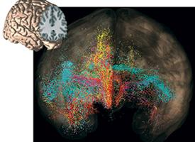 Networks important in assessing risk/reward. Each color represents connections from different brain regions associated with these functions. Disruption in specific regions and their connections are associated with OCD.