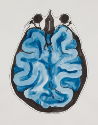 'Depression' - a painting by local artist Stephen Magrath as part of the recent 'Art of the Brain' collaboration with researchers in our Department of Pharmacy & Pharmacology