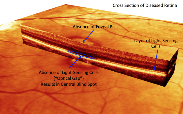 """Optical Coherence Tomography (OCT) imaging revealed the loss of outer segments in foveal cone cells in the """"optical gap"""" of a patient with ATF6A defects. (Credit: Laboratory of Dr. Stephen Tsang, Columbia University Medical Center)"""