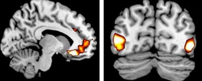 Rebecca Todd MRI mages shows increased activity in the brains of EEV gene carriers.