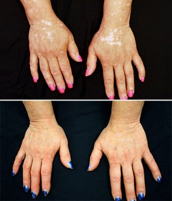 After five months of treatment, the patient's hands show significant repigmentation. Image credit: Dr. Brett King