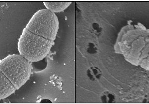 S. mutans bacteria, before and after treatment with C16G2 Courtesy of Dr. Wenyuan Shi