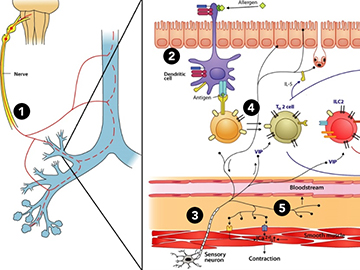 A vicious cycle of neuro-immune signaling in asthma.