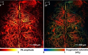 This mouse brain was imaged in vivo without imaging agents using fast functional photoacoustic microsopy. The researchers used the hemoglobin in the red blood cells to provide contrast in the left image. Oxygen saturation levels in the hemoglobin in the same mouse brain define the cortical arteries and veins in the right image. Image credit: Junjie Yao and Lihong Wang, WUSTL