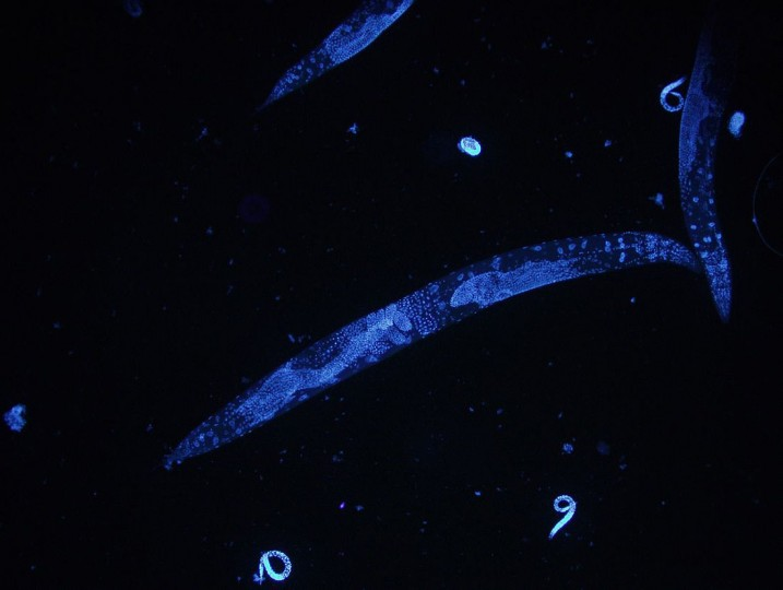 Microscope image of a C. elegans roundworm by HoPo via Wikimedia Commons.